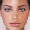 مرطوب کننده پوست خشک و خیلی خشک